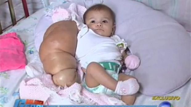 bebe-avec-un-bras-geant-enorme-gigantesque bizare