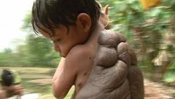 didier-montalvo-turtle-boy-operation-l-enfant-tortue-il-a-une-carapace-dans-le-dos.jpg