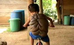enfant-tortue-maladie-dos-2-rare.jpg