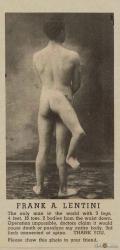 francesco-lentini-malformation-3-jambes.jpg