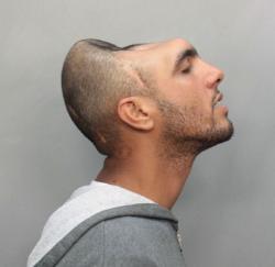 half-head-mugshot-1malformation-homme-femme-insolite.jpg