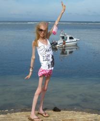 ksyusha-bubenko-1-maladie-rare-anorexique.jpg