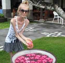 ksyusha-bubenko-maladie-rare-anorexique-la-plus-maigre-monde-laide-record-muscle.jpg