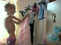 ksyusha-bubenko-maladie-rare-anorexique-la-plus-maigre-monde.jpg