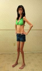 la-femme-la-plus-maigre-du-monde-lizzie-velasquez.jpg