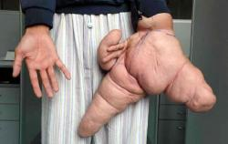 lui-hua-plus-grande-main-maladie-rare-record-monde-grand-petite.jpg