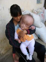 un-bebe-chinois-souffre-d-une-mysterieuse-maladie-rare-malformation-tete.jpg