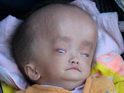 un-bebe-chinois-souffre-d-une-mysterieuse-maladie-rare.jpg