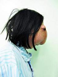 wu-xiaoyan-malforme-maladies-rares-monstre-femme-devisage-incroyable.jpg